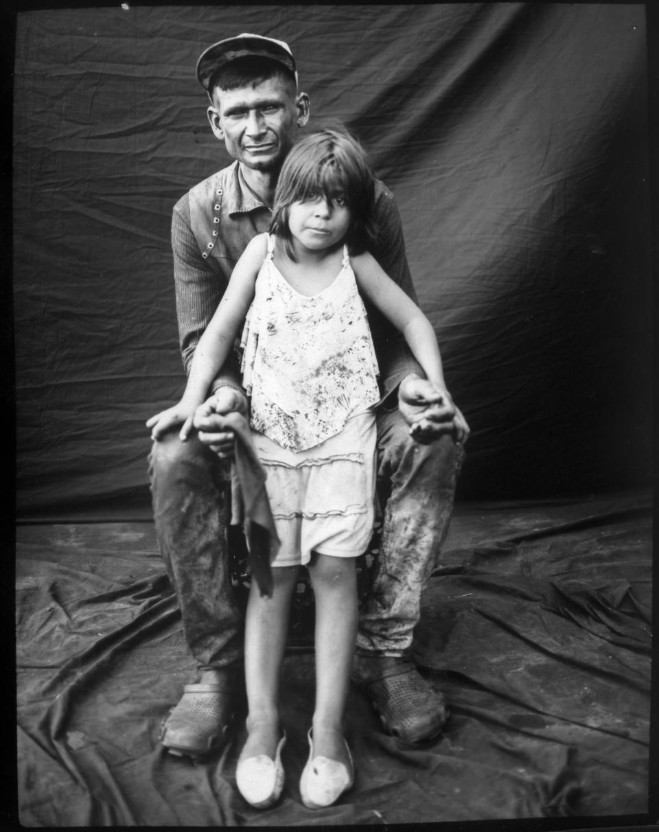 Fisherman Emanuel Salcedo poses for a portrait with his daughter Emilialsen after a day of harvesting crabs from oil-contaminated Lake Maracaibo in Cabimas, Venezuela. (Photo: Rodrigo Abd/AP)