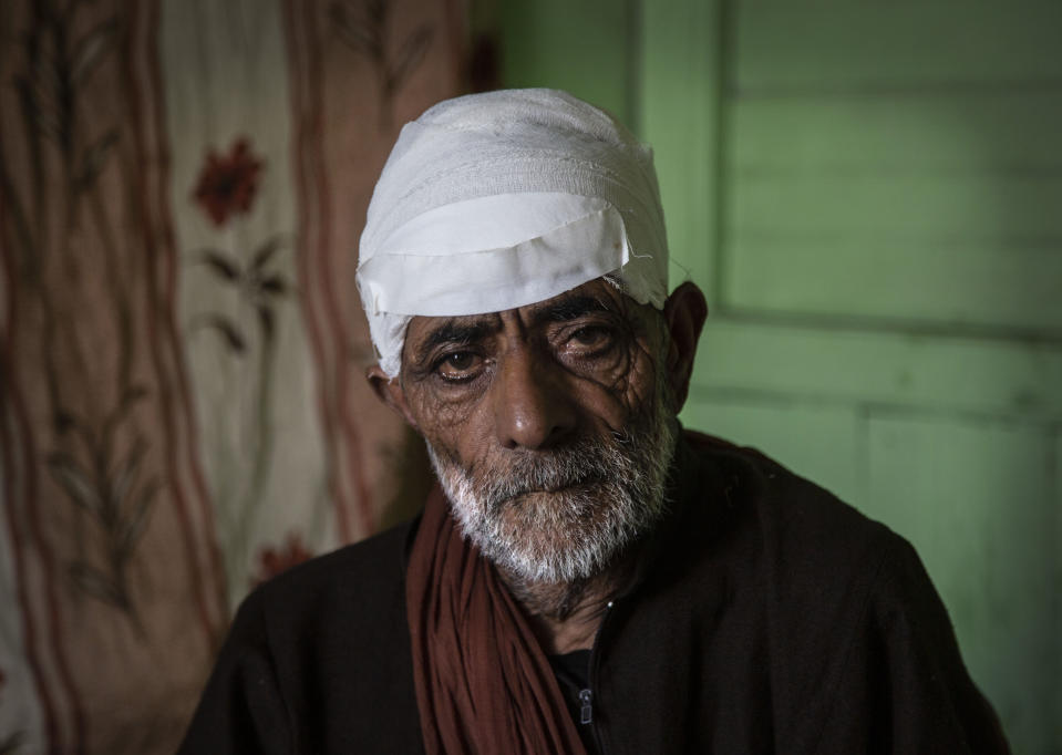 Mohammad Siduiq Kumar poses for photographs inside his home after he got injured in a bear attack at Kangan, northeast of Srinagar, Indian controlled Kashmir, Tuesday, Sept. 8, 2020. An elderly vegetable seller. Kumar was returning to his home with fodder for his cattle. Amid the long-raging deadly strife in Indian-controlled Kashmir, another conflict is silently taking its toll on the Himalayan region's residents: the conflict between man and wild animals. According to official data, at least 67 people have been killed and 940 others injured in the past five years in attacks by wild animals in the famed Kashmir Valley, a vast collection of alpine forests, connected wetlands and waterways known as much for its idyllic vistas as for its decades-long armed conflict between Indian troops and rebels. (AP Photo/Mukhtar Khan)