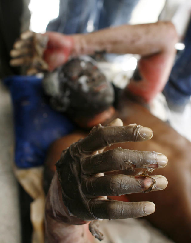 <p>An injured resident reacts after an earthquake in Port-au-Prince, Haiti, Jan. 13, 2010. (Photo: Eduardo Munoz/Reuters) </p>