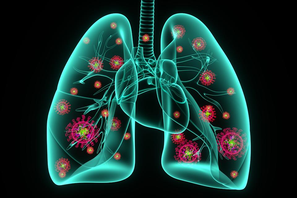 3D Rendering,COVID-19 virus infection of human lungs