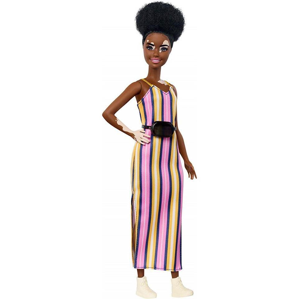 """<p><strong>Barbie</strong></p><p>walmart.com</p><p><strong>$7.94</strong></p><p><a href=""""https://go.redirectingat.com?id=74968X1596630&url=https%3A%2F%2Fwww.walmart.com%2Fip%2F993898176&sref=https%3A%2F%2Fwww.bestproducts.com%2Fparenting%2Fg32781476%2Fdiverse-multicultural-toys-for-kids%2F"""" rel=""""nofollow noopener"""" target=""""_blank"""" data-ylk=""""slk:Shop Now"""" class=""""link rapid-noclick-resp"""">Shop Now</a></p><p>Vitiligo, a condition that causes a person to lose the pigment in parts of their skin, <a href=""""https://ghr.nlm.nih.gov/condition/vitiligo#:~:text=Vitiligo%20is%20a%20common%20disorder,frequency%20in%20all%20ethnic%20groups."""" rel=""""nofollow noopener"""" target=""""_blank"""" data-ylk=""""slk:is fairly common and affects around 1% of the world"""" class=""""link rapid-noclick-resp"""">is fairly common and affects around 1% of the world</a>. This means the chances of your own child meeting someone with this condition is pretty likely. Incorporating this beautiful Black Barbie with vitiligo into your kid's Barbie Dreamhouse clique will help them build awareness that will pay off big time in the future. </p><p>In an effort to diversify their traditional Barbies, Mattel has introduced <a href=""""https://www.walmart.com/browse/toys/barbie-fashionistas/4171_4187_1953337_8898526_7986857"""" rel=""""nofollow noopener"""" target=""""_blank"""" data-ylk=""""slk:an entire line of dolls that embrace differences"""" class=""""link rapid-noclick-resp"""">an entire line of dolls that embrace differences</a>. </p>"""