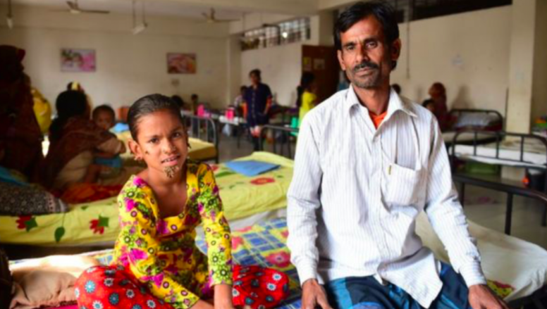 Sahana and her father. The little girl developed a bark-like wart on her face which has now spread. Photo: AFP.