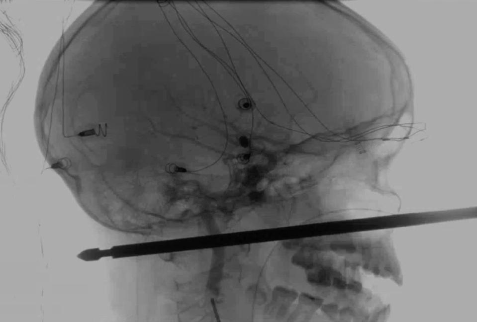 <em>An X-ray shows how a meat skewer impaled in the skull of Xavier Cunningham after he fell from his tree house (AP)</em>