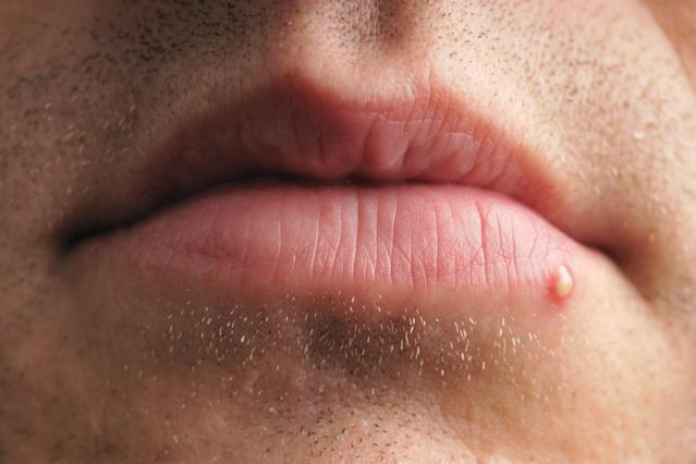 Lip on clear bump Bumps on