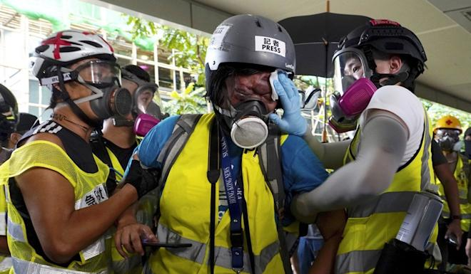 Indonesian journalist Veby Mega Indah (centre) is helped away after being injured covering a protest in Hong Kong. Photo: AP
