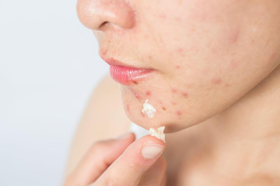 """<p>Even too much of a good thing can be bad, and that rule applies to acne spot treatments, too. This is especially true with over-the-counter treatments containing benzoyl peroxide and salicylic acid. </p> <p>""""The tendency is to apply them liberally, which will only make the surrounding skin red, dry, and irritated,"""" said <a href=""""https://www.instagram.com/drsharimarchbein/"""" class=""""link rapid-noclick-resp"""" rel=""""nofollow noopener"""" target=""""_blank"""" data-ylk=""""slk:Shari Marchbein"""">Shari Marchbein</a>, MD, New York City-based board-certified dermatologist and clinical assistant professor of dermatology at NYU School of Medicine. """"Instead, if you are going to spot treat, apply only a very thin layer one or two times per day maximum.""""</p> <p>If nothing seems to be working or your acne is leaving you with scars or hyperpigmentation, that's when it's time to seek care from your doctor.</p>"""
