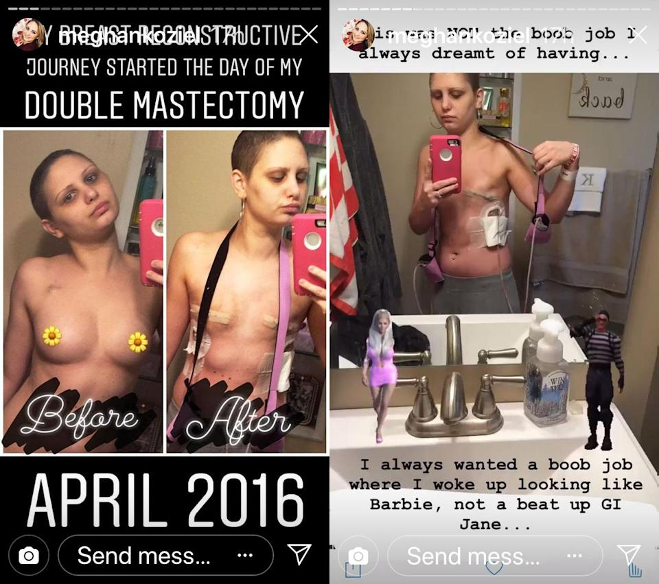 Koziel shared details about her breast reconstruction in an Instagram story this week. (Photo: meghankoziel)