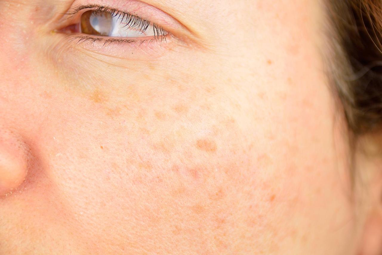 """<p>Throughout your lifetime, you're bound to develop new freckles, moles, and discoloration, including age spots. Your task is knowing what they are and the differences between each. """"Age spots can refer to a variety of skin lesions that develop with age and/or cumulative sun exposure,"""" says Deanne Mraz Robinson, MD, board-certified dermatologist of the <a rel=""""nofollow"""" href=""""http://www.ctdermgroup.com/team/deanne-mraz-robinson-md"""">Connecticut Dermatology Group</a>. """"Sun freckles or liver spots are tan or brown, flat lesions on sun-exposed areas,"""" she explains.</p>"""