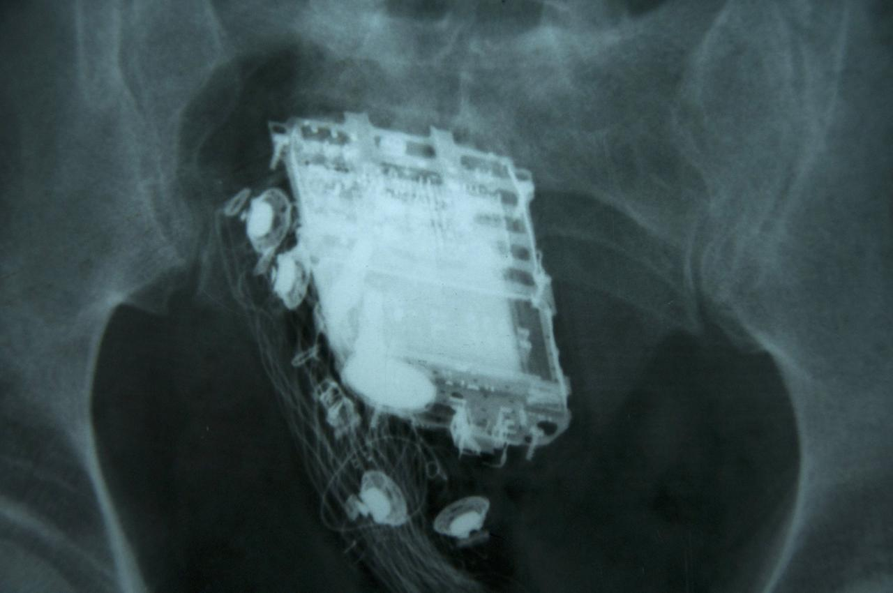 In this photograph received by AFP on February 8, 2013, a mobile phone and a hands free kit are seen in the rectum on an X-ray of a 58 year old Sri Lankan prisoner. A Sri Lankan prisoner who tried to hide his mobile phone during a search of his cell was caught out when guards heard ring tones from his rear-end, a hospital official said. The 58-year-old convict had to be admitted to the national hospital in Colombo where doctors later retrieved the handset from his rectum. AFP PHOTO/ STR