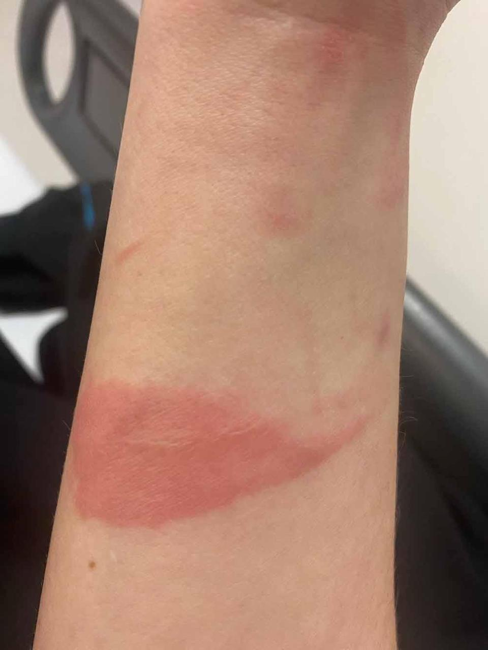 Paige was left with burn scars from the accident. PA REAL LIFE COLLECT
