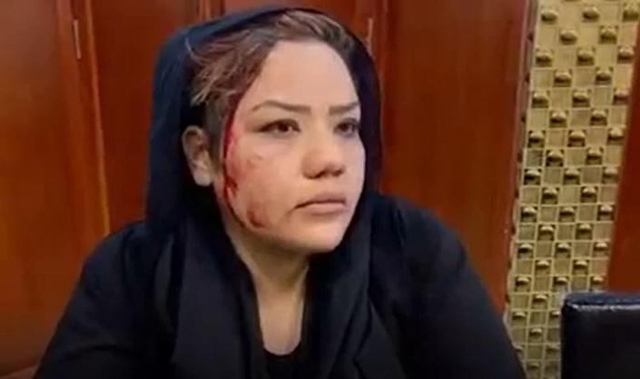 An image from a video sent to CBS News by Afghan women's rights activist Nargis Sadat shows her bleeding from her head after Taliban members attacked her during a protest in Kabul in September, 2021.