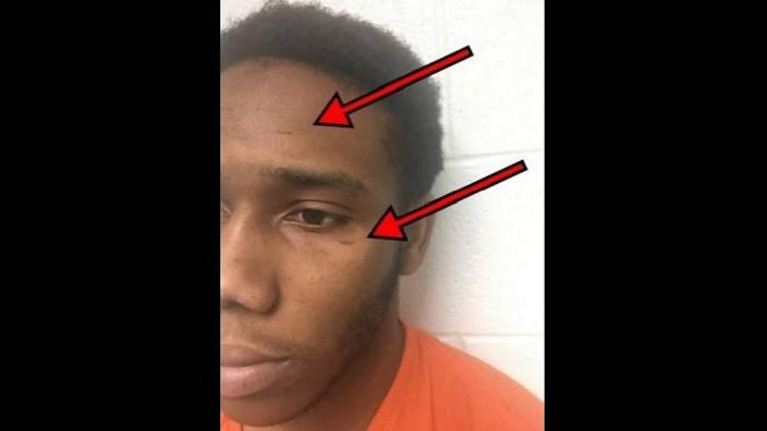 Semaj Bradley, who is charged in the fatal April 15, 2018 fatal attempted robbery of Hong Zheng in Durham, was photographed on May 29, 2018. The photograph shows two healed scratches on his face that investigators contend he received after Zheng's wife returned fire on them during the attempted robbery.