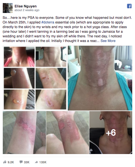 After applying essential oils to her neck and wrist and then used a tanning bed, this woman broke out in blisters and burns.
