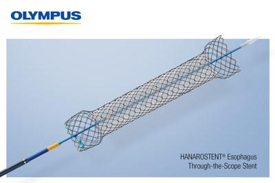 HANAROSTENT® Esophagus Through the Scope stents are 510(k) cleared devices made by M.I. Tech and now distributed exclusively through Olympus in the U.S for use in palliative treatment of esophageal stricture and/or trachea-esophageal fistula caused by malignant tumors.
