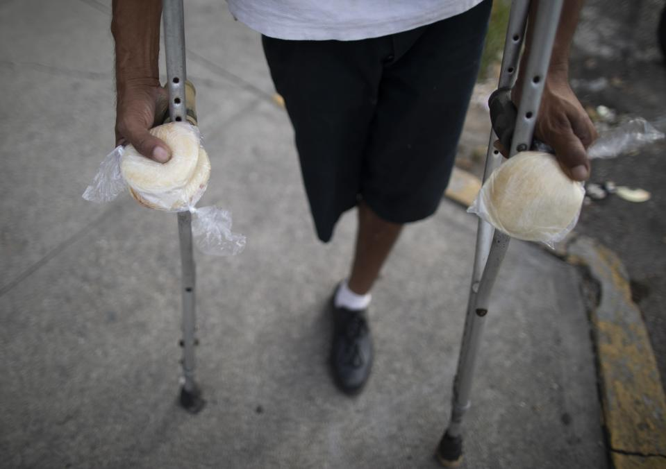 A man on crutches holds packages of homemade arepas given to him by 55-year-old publicist Andres Burgos, who started handing out the corn flour patties to needy children, adults and the elderly, in Caracas, Venezuela, Tuesday, Oct. 20, 2020. Burgos started small with his own money a year ago, passing out a few arepas on his bicycle route from home to the office, or in visits to nearby hospitals. (AP Photo/Ariana Cubillos)