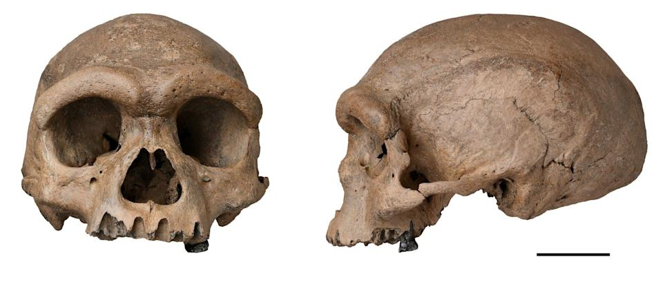 Harbin cranium, which was reportedly discovered in China in 1933 - Wei Gao/PA