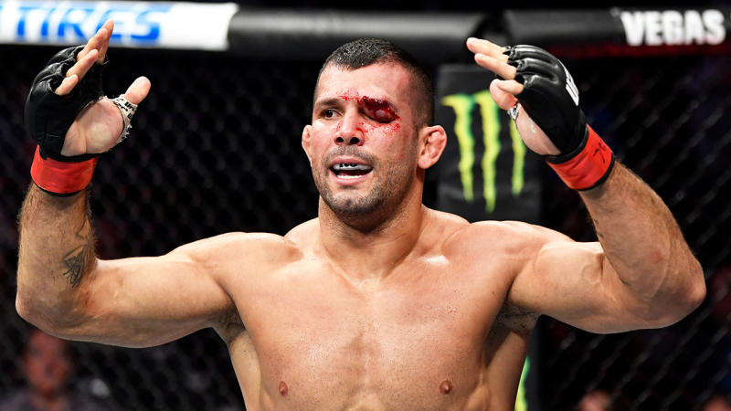 Rodolfo Vieira throws his hands up to celebrate with a damaged eye.