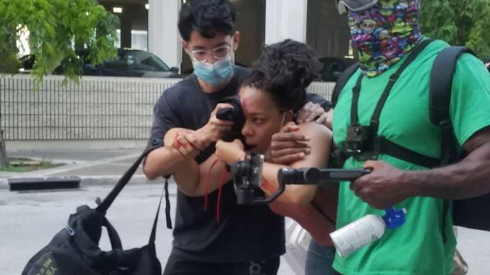 After a police officer shot LaToya Ratlieff in the face with a foam rubber bullet as she stumbled away from tear gas, other protesters rushed to the aid of the bleeding woman.
