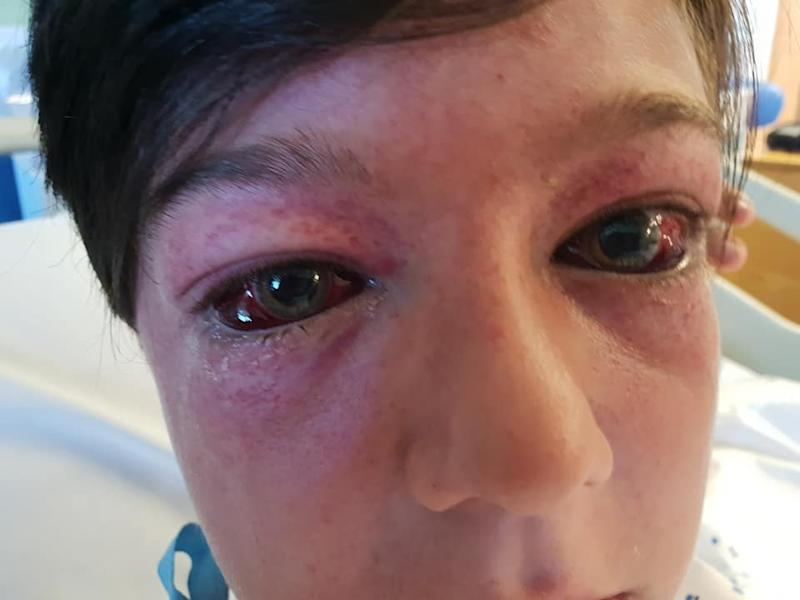 Tyler Broome, 11 from Nottingham, suffered bulging red eyes and spots known as G-measles after suffering high G-force during a stunt on a roundabout: SWNS