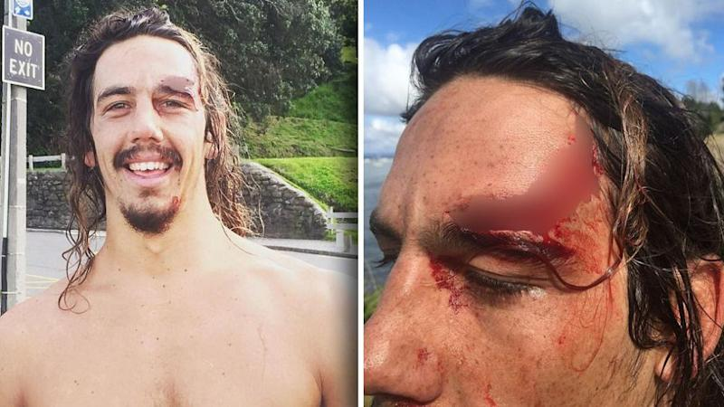 Travis McCoy was left with a deep gash above his eye after being cut open by the fin on his surfboard. Source: Instagram