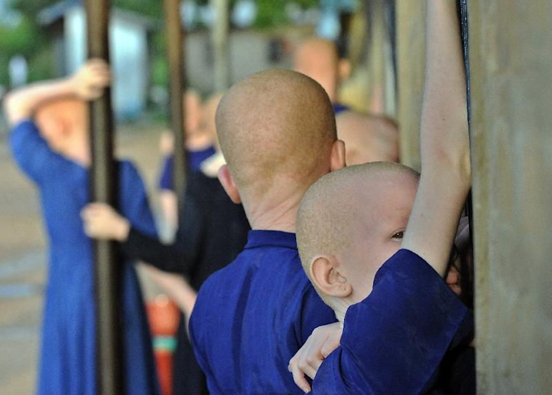 At least 76 albinos have been murdered since 2000 with their dismembered body parts selling for around $600 (528 euros) and entire bodies fetching $75,000, according to United Nations experts
