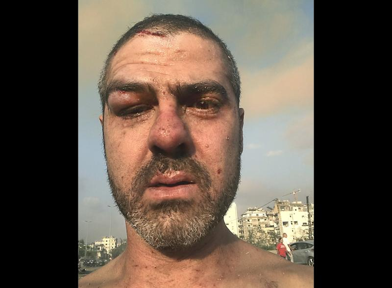 Nabih Bulos was injured in the Beirut explosion