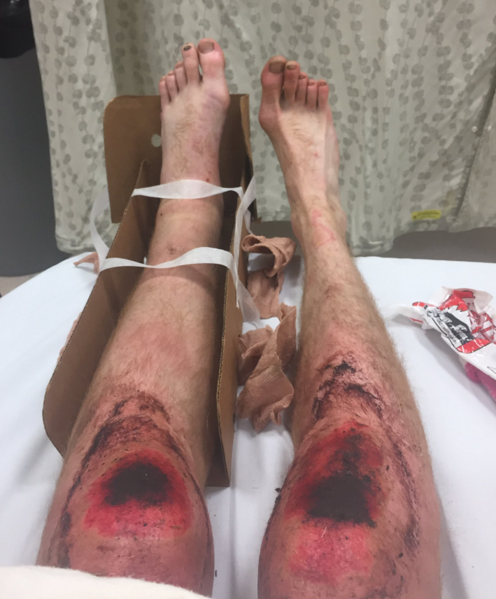 Joseph Oldendorf's knees were blackened and bloodied by the time he was rescued. Source: KIRO7 via Michael Spears