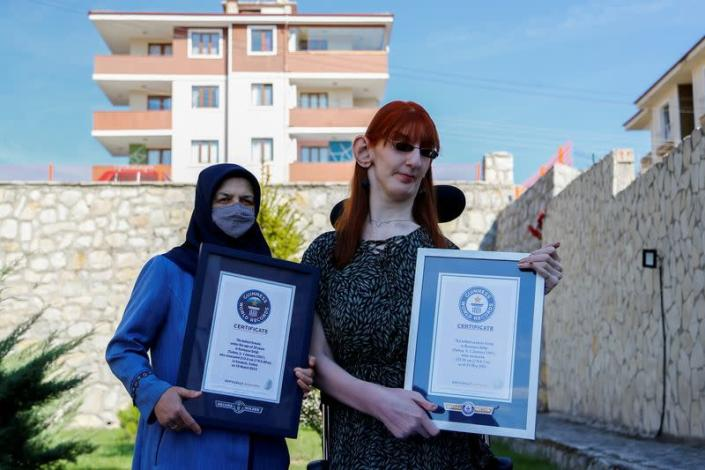 World's tallest woman Rumeysa Gelgi attends a news conference in Karabuk