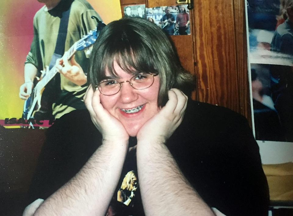 Leah Jorgensen used to be so conscious of her excess body hair (Photo: SWNS)