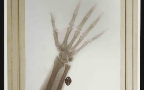X-ray of the Hand and Wrist of Nicholas II, Emperor of Russia, 1898 - Credit: Harvard Medical Library