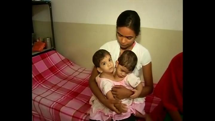 Conjoined twins Aradhana and Stuti  are being operated today in Padhar hospital which has been their home since their birth. The 11 month girls were disowned by their parents because of social pressure and financial inability to take care of their medical treatment.