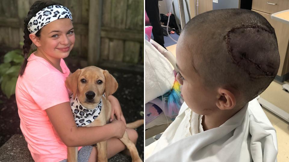 Savannah Coleman two years after the dog attack (left) and her head covered in stitches after the dog attack (right).