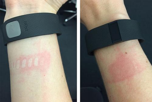 Rash from Fitbit Charge