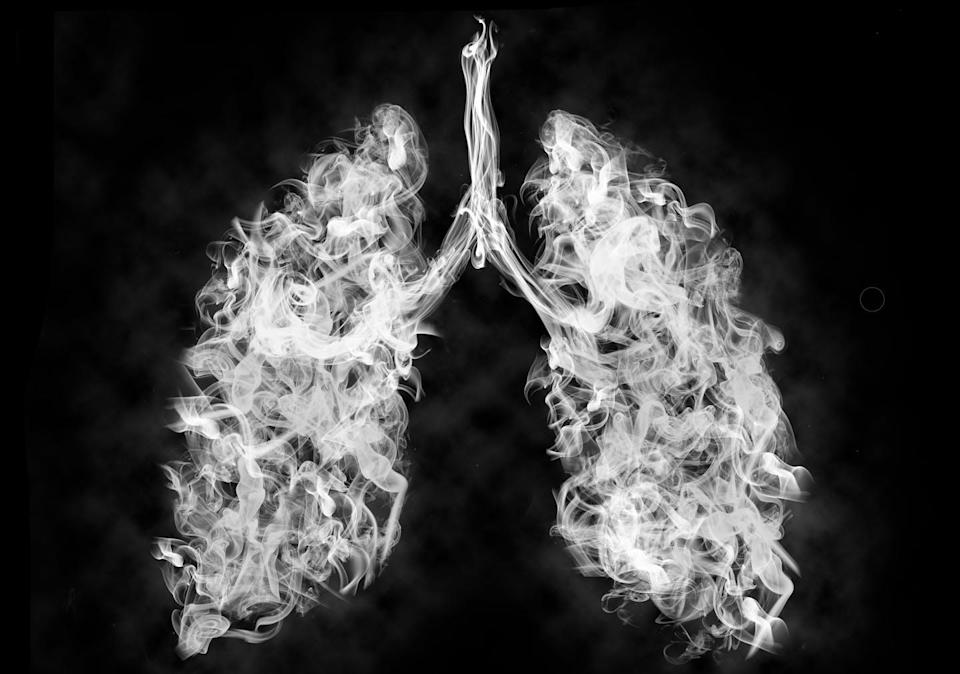 """<span class=""""caption"""">Chronic obstructive pulmonary disease is the third leading cause of death in the United States.</span> <span class=""""attribution""""><a class=""""link rapid-noclick-resp"""" href=""""https://www.gettyimages.com/detail/photo/illustration-of-a-toxic-smoke-in-lung-cancer-or-royalty-free-image/1179207088"""" rel=""""nofollow noopener"""" target=""""_blank"""" data-ylk=""""slk:Pascal Kiszon via Getty Images"""">Pascal Kiszon via Getty Images</a></span>"""