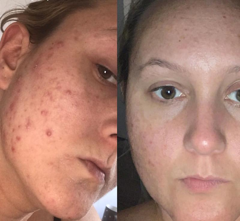 Womans skin with acne (left) and after using Carbon Theory with clear skin (right)