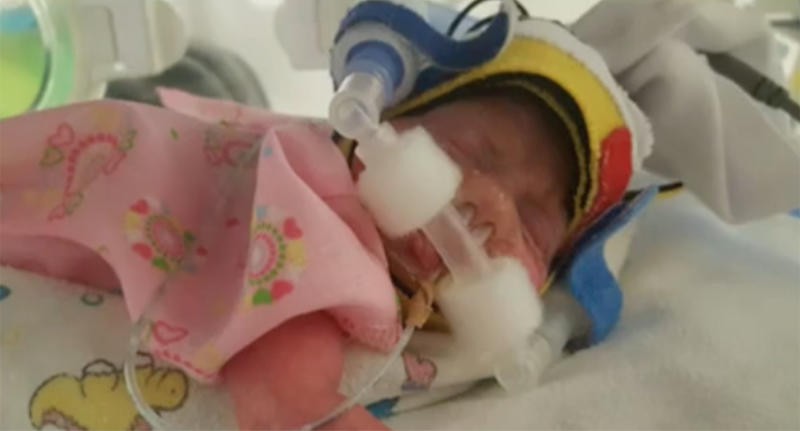 Popular superfood coconut oil saved Perth premature baby Isabella's skin.
