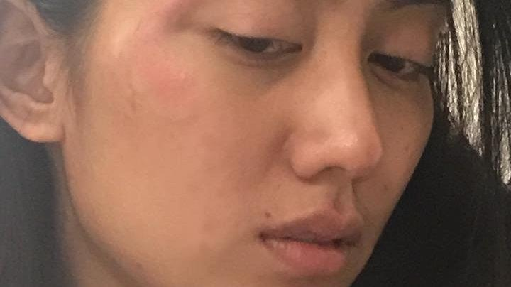 Filipina Model Says Woman Punched Her In Garage, Called Her 'Chinky Eyes'