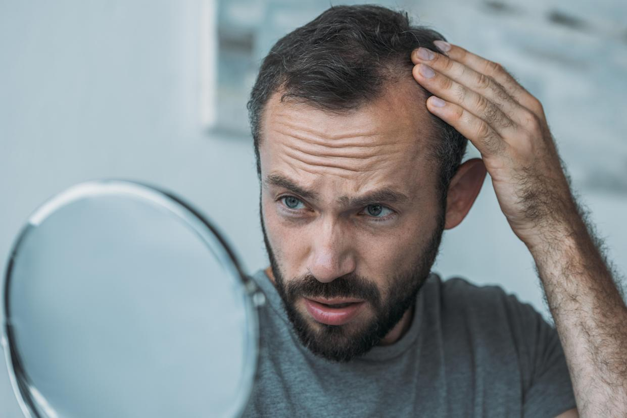 Working more than 52 hours a week may double a man's risk of hair loss. [Photo: Getty]
