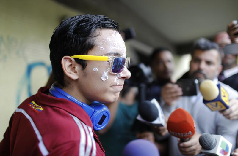 16-year-old Rufo Chacon, wearing reflective sunglasses, speaks to a group of reporters outside the offices of Foro Penal, a Venezuelan human rights organization, in Caracas, Venezuela, Friday, July 19, 2019. The Venezuelan teenager who lost his eyesight when he was hit by police buckshot during a protest says he wants to continue studying. (AP Photo/Ariana Cubillos)