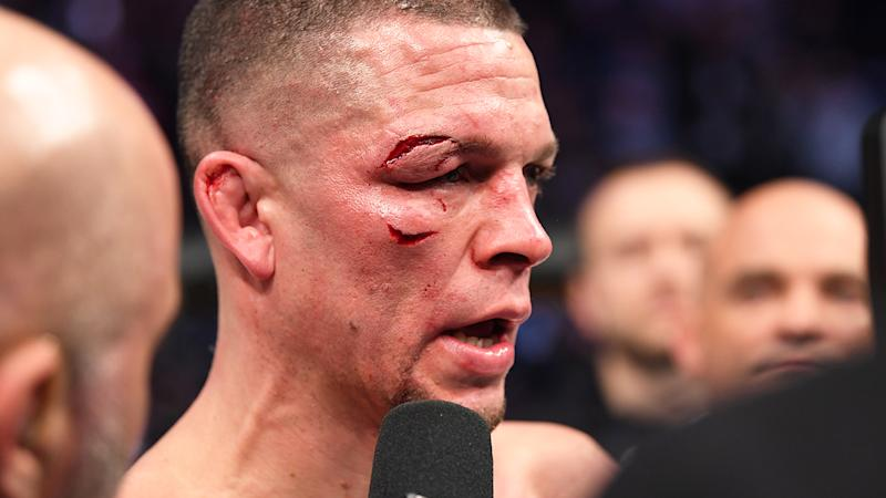 Nate Diaz is interviewed after his loss (doctor's stoppage) to Jorge Masvidal in their welterweight bout for the BMF title during the UFC 244 event at Madison Square Garden. (Photo by Josh Hedges/Zuffa LLC via Getty Images)