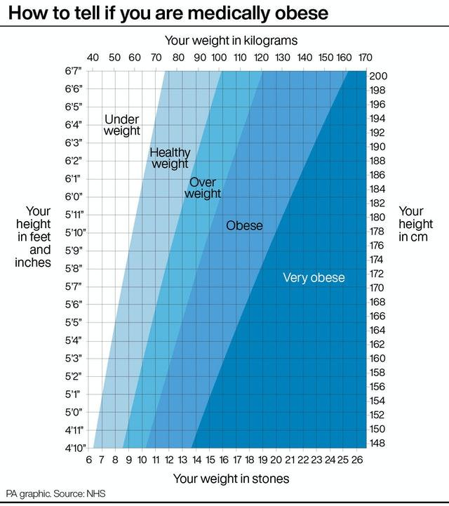 How to tell if you are medically obese