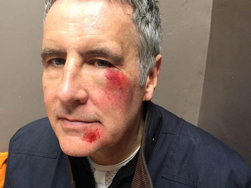 The Sky presenter was left with injuries to the left side of his cheek and chin: Dermot Murnaghan/Twitter