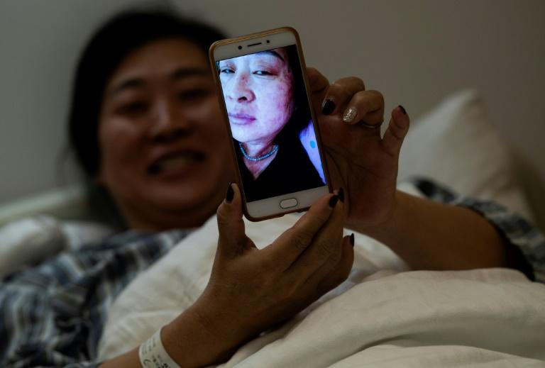 Wang Deyun says her skin infection, caused by a reaction to modern medicine for blood pressure, is clearing up after a course of face masks and plant infusions
