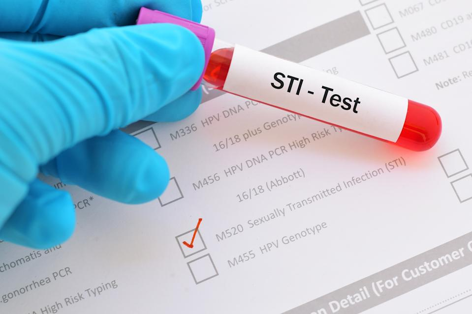Blood sample for sexually transmitted infection (STI) test
