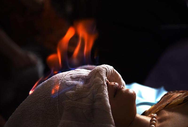 "A woman undergoes ""fire therapy"" in Beijing, June 17, 2014"