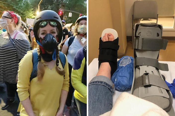 """Ellen Urbani was hit in the foot by what she believes was a rubber bullet at a protest in Portland, Ore., on July 24.<span class=""""copyright"""">Courtesy Joan Henderson-Gaither/Ellen Urbani</span>"""