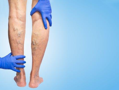 "<span class=""caption"">Varicose veins typically happen in the legs, though any superficial vein may become varicosed.</span> <span class=""attribution""><a class=""link rapid-noclick-resp"" href=""https://www.shutterstock.com/image-photo/lower-limb-vascular-examination-because-suspect-762632605"" rel=""nofollow noopener"" target=""_blank"" data-ylk=""slk:Solarisys/ Shutterstock"">Solarisys/ Shutterstock</a></span>"