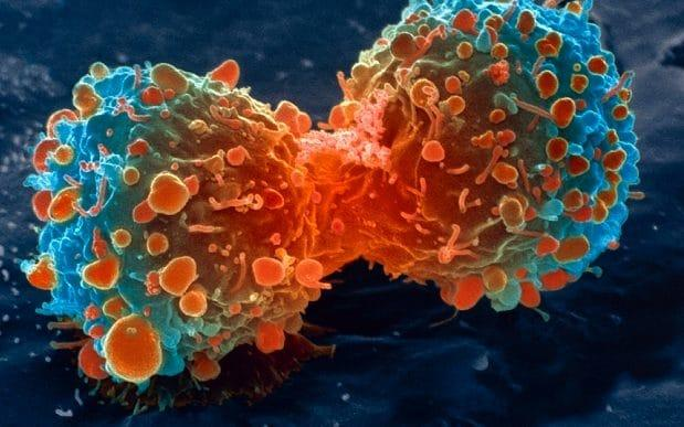 Lung cancer patients were give two rounds of nivolumab before surgery - Lung Cancer