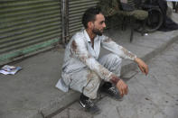 A blood-stained man rests after he helped people who were injured in a deadly bomb explosion in Kabul, Afghanistan, Tuesday, July 13, 2021. The bomb killed several people and wounded over 10 others, Kabul police officials said on Tuesday. It comes as the U.S. all but winds up its 'forever war' in Afghanistan and a day after the outgoing commander Gen. Scott Miller warned increasing violence reduced the chances of finding a peaceful end to decades of war. (AP Photo/Rahmat Gul)