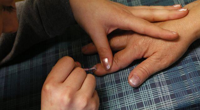 People are being warned to check their nails for unsual black lines after a beauty salon worker said one of her clients was diagnosed with skin cancer. Photo: Getty/stock